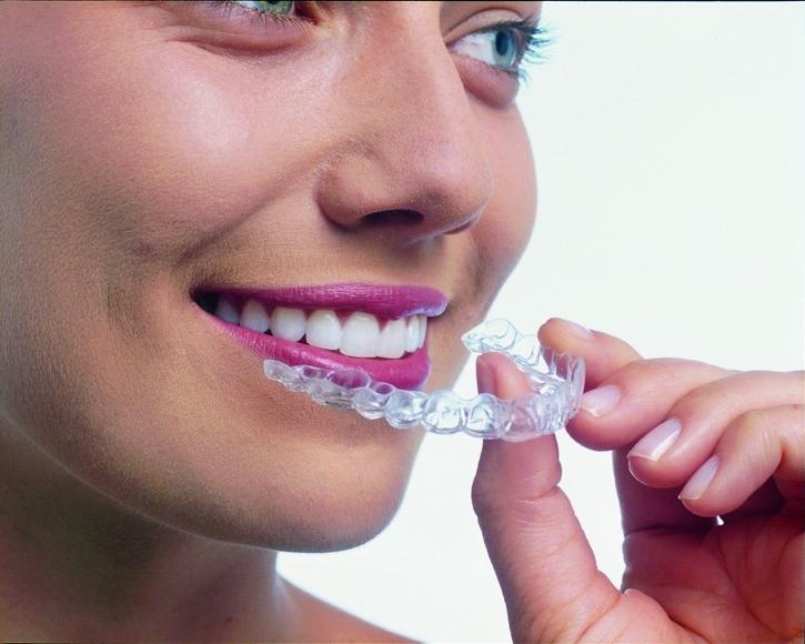 マウスピース型矯正歯科装置(インビザライン)