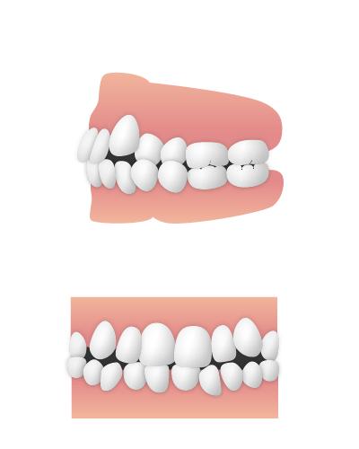 凸凹(叢生)・乱杭歯・歯並びがかなり悪い状態