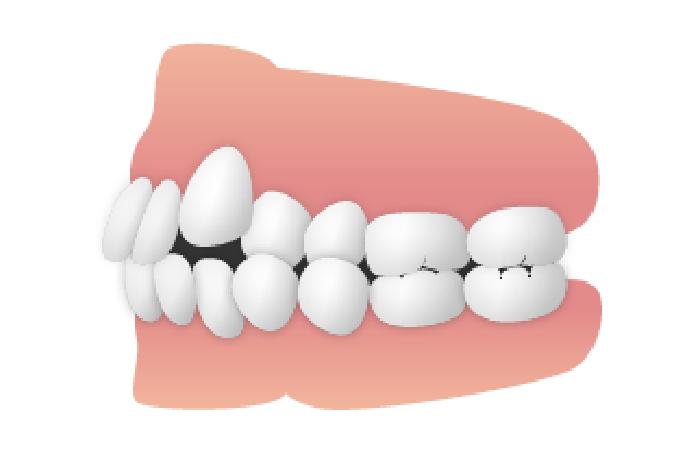 八重歯がある